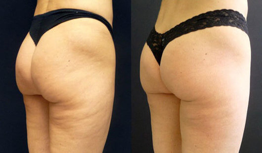 cupping thighs cellulite